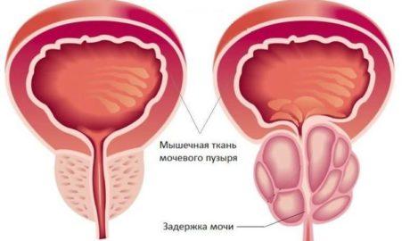 Лечение аденомы простаты в Махачкале